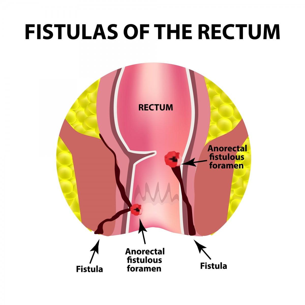 Dokter Spesialis Fistula Ani