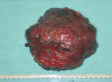 Gambar kanker hati setelah dioperasi