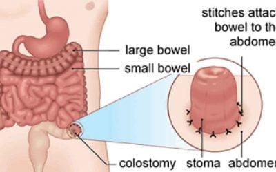 Mengenal Stoma Kolostomi Ileostomi