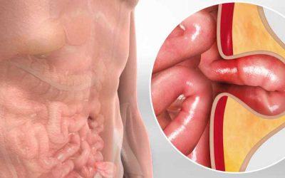 Cara Mengobati Penyakit Hernia